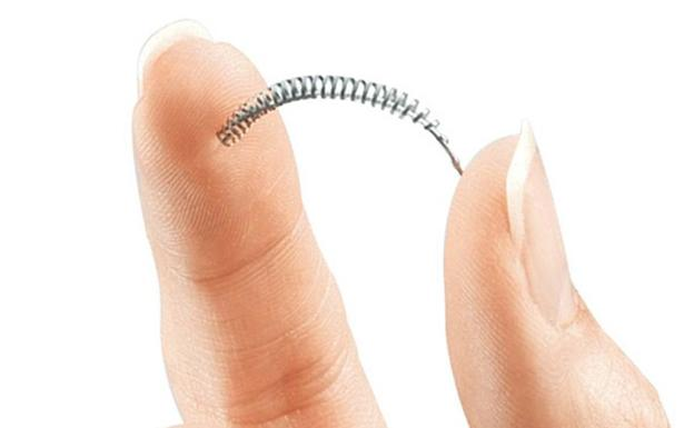 El anticonceptivo 'Essure'./